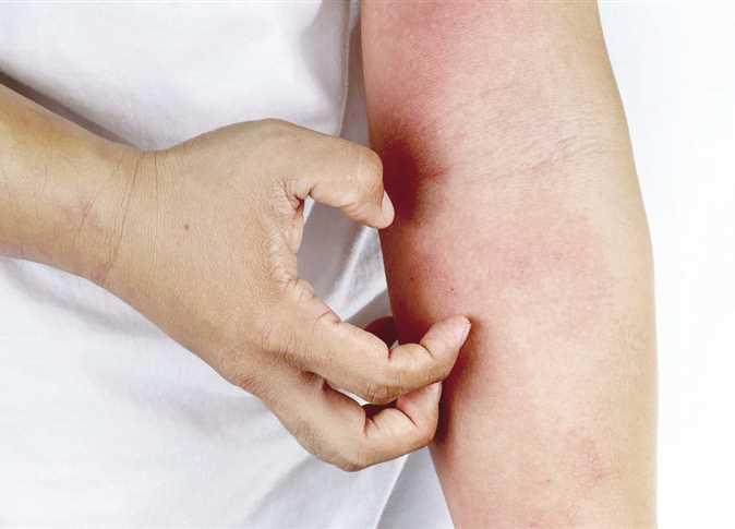 مضاد حيوي طبيعي لالتهاب الجلد